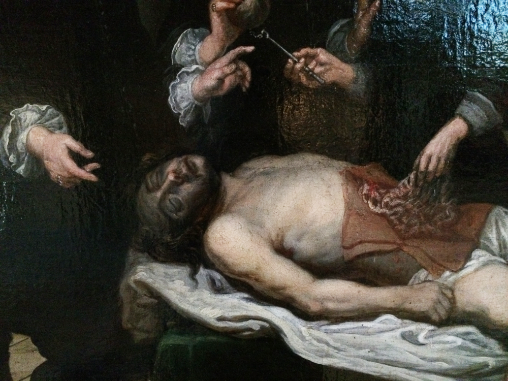 The Anatomy Lesson, Anonymous, Bruges, 1679